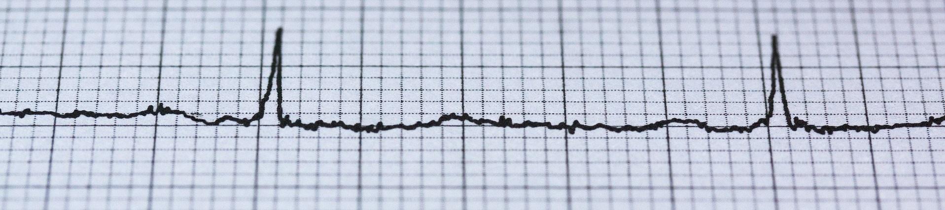 Ausschläge auf einem EKG Papier